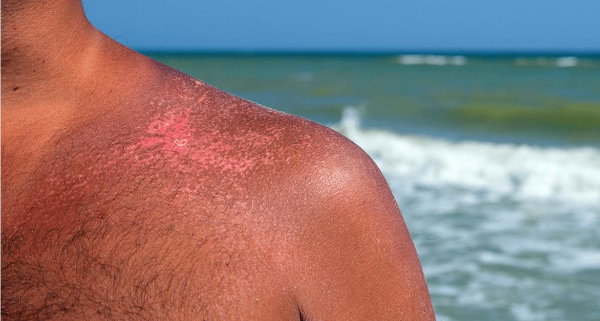 kosmetyki cbd na oparzenia słoneczne - poparzenie słoneczne